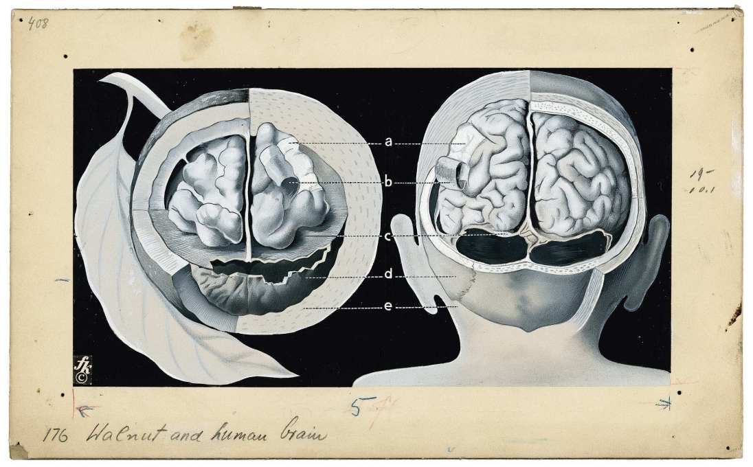 """Walnut and human brain"", 1939. ""The way a walnut is packaged is the same as a man′s brain″."